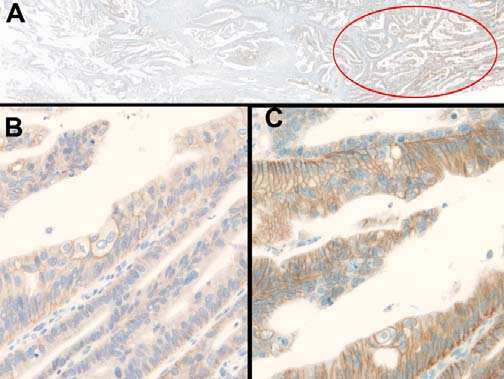 A) circled area in red showed B) 2+ membrane staining, with incomplete basolateral membrane staining using the Dako polyclonal antibody with a home-brew method whilst C) stained with
