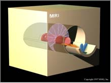 resonance imaging) MRI