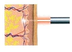 Radiofrequency ablation Laser ablation 1. 2. 3.