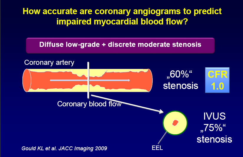 Coronary angiography is a widely accepted invasive technique but
