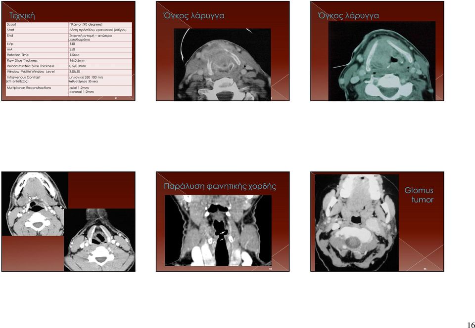 woman with hoarseness and right recurrent laryngeal nerve paralysis who underwent axial contrast-enhanced CT.