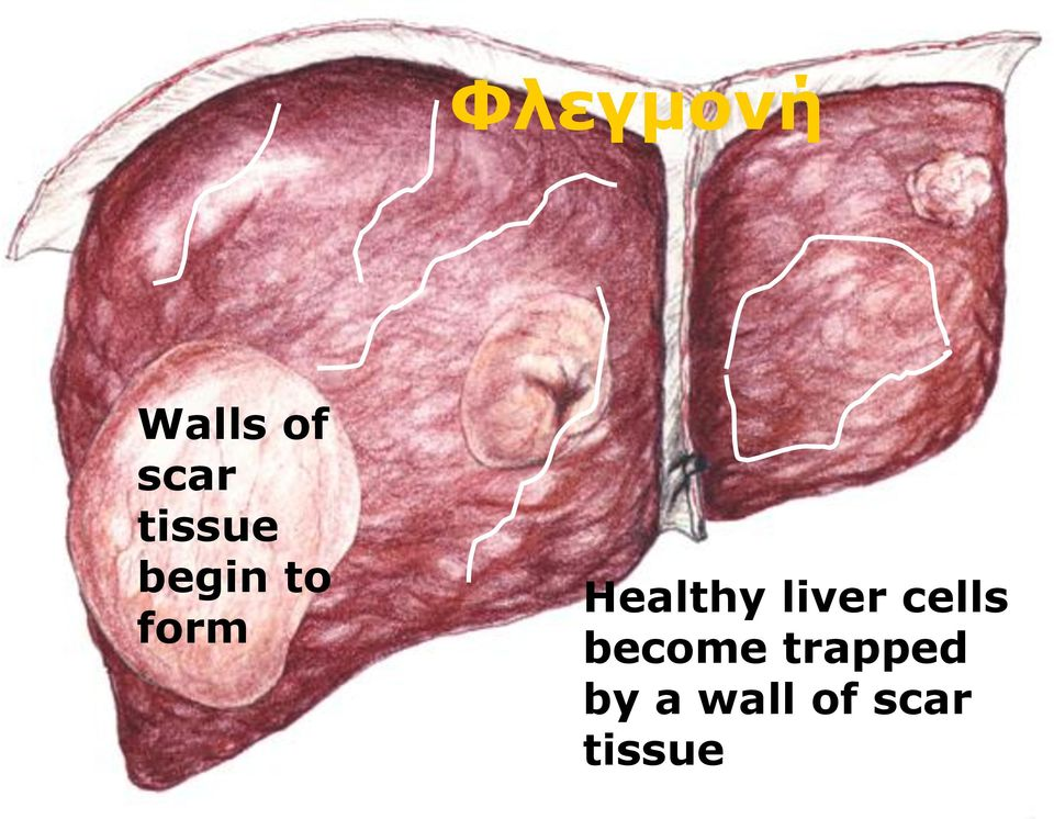 Healthy liver cells