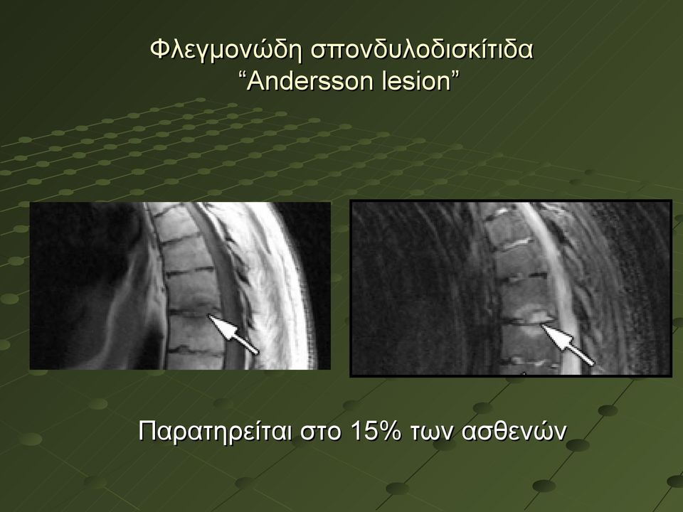 Andersson lesion