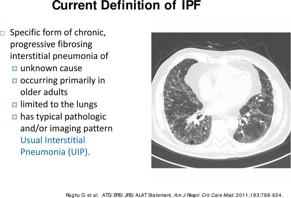 to the lungs has typical pathologic and/or imaging pattern Usual Interstitial