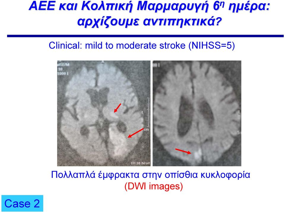 Clinical: mild to moderate stroke
