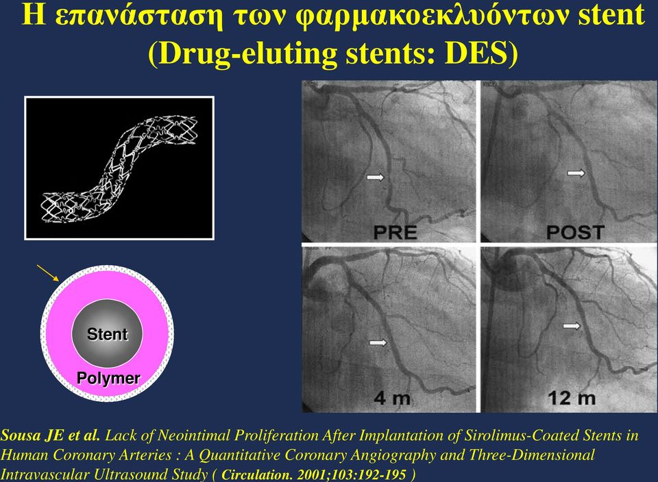 Human Coronary Arteries : A Quantitative Coronary Angiography and