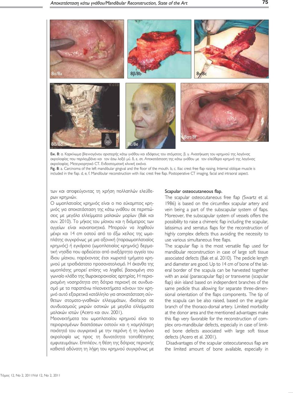 Ενδοστοματική κλινική εικόνα. Fig. 8: a. Carcinoma of the left mandibular gingival and the floor of the mouth. b, c. Iliac crest free flap raising. Internal oblique muscle is included in the flap.