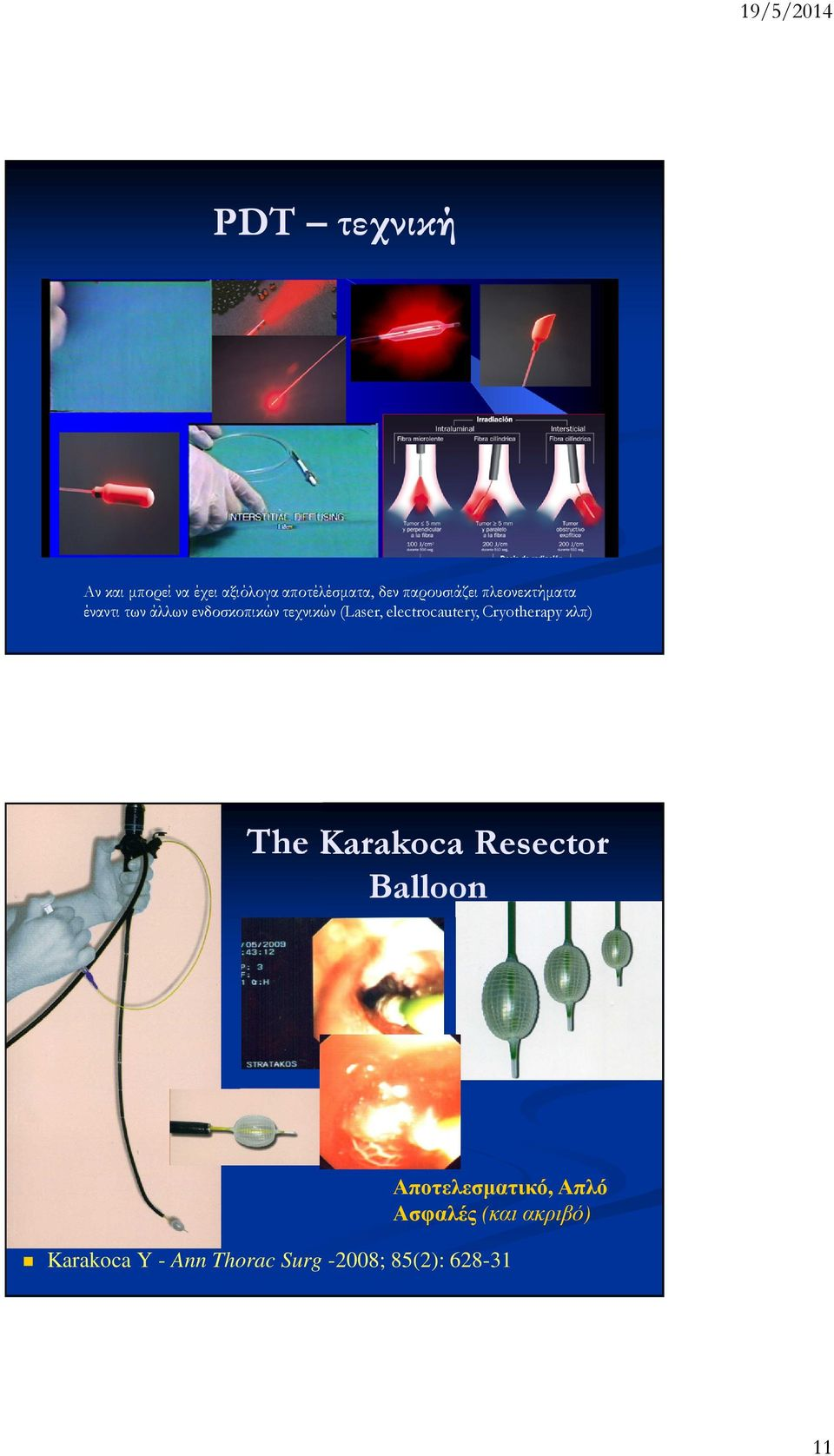 electrocautery, Cryotherapy κλπ) The Karakoca Resector Balloon