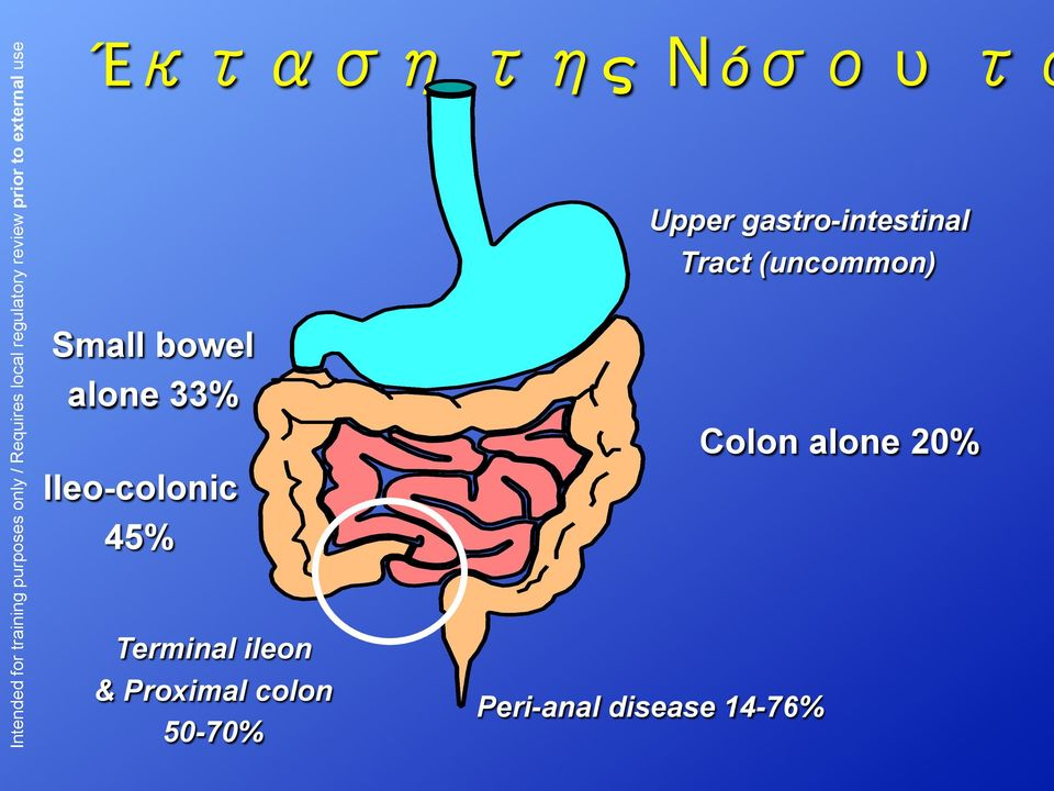 50-70% Upper gastro-intestinal Tract