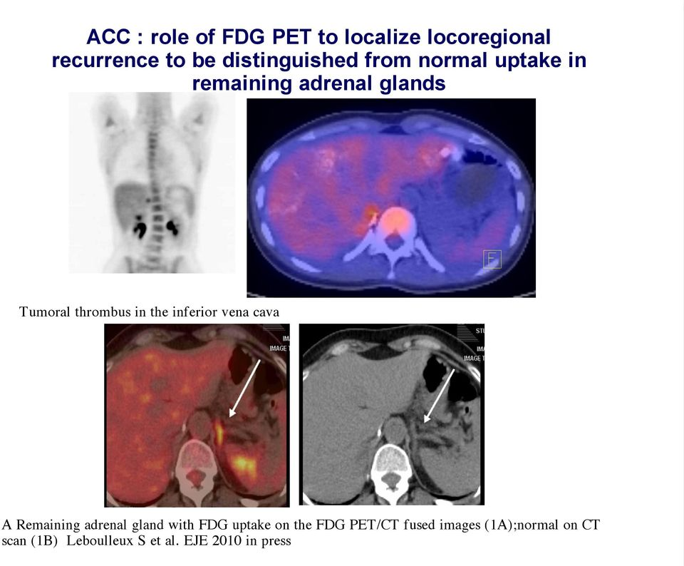 thrombus in the inferior vena cava A Remaining adrenal gland with FDG uptake