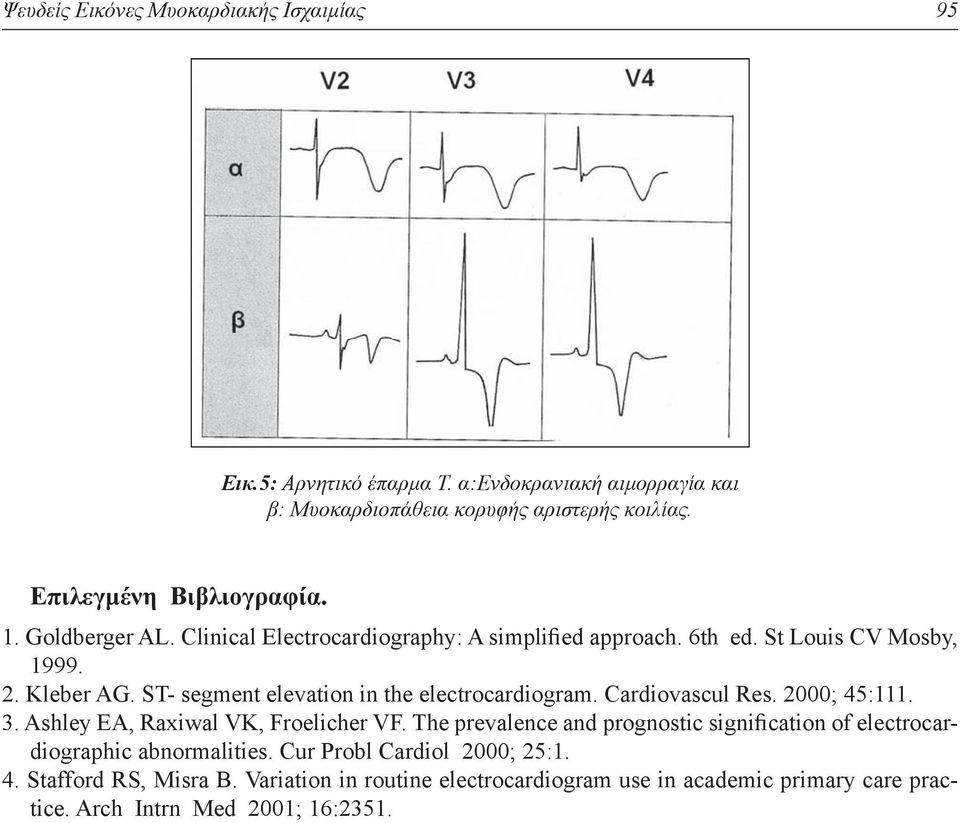ST- segment elevation in the electrocardiogram. Cardiovascul Res. 2000; 45:111. 3. Ashley EA, Raxiwal VK, Froelicher VF.