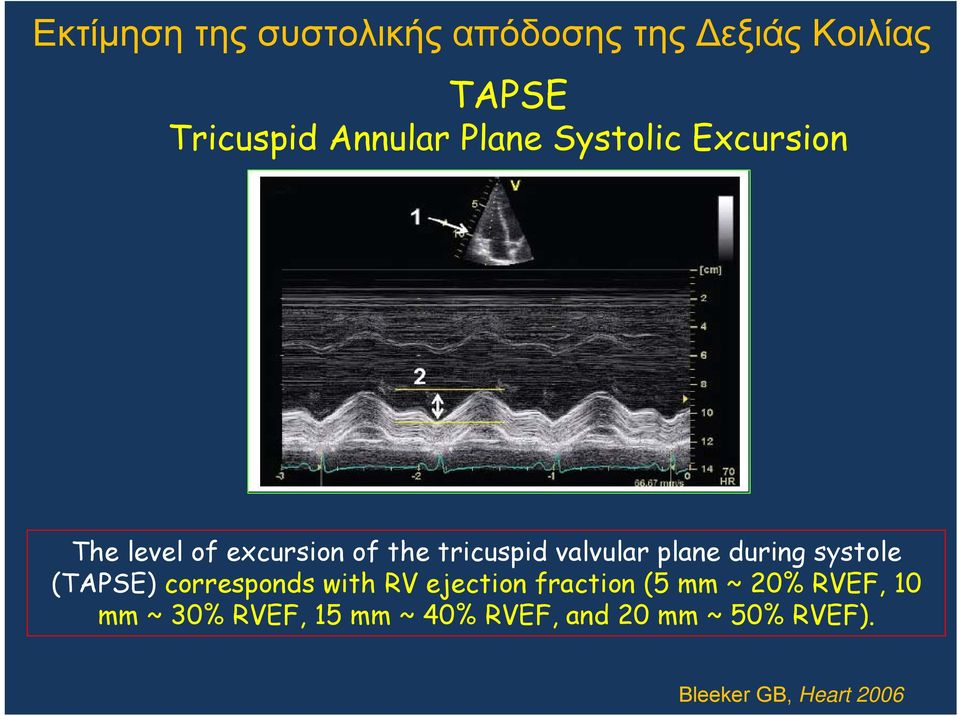 plane during systole (TAPSE) corresponds with RV ejection fraction (5 mm ~ 20%