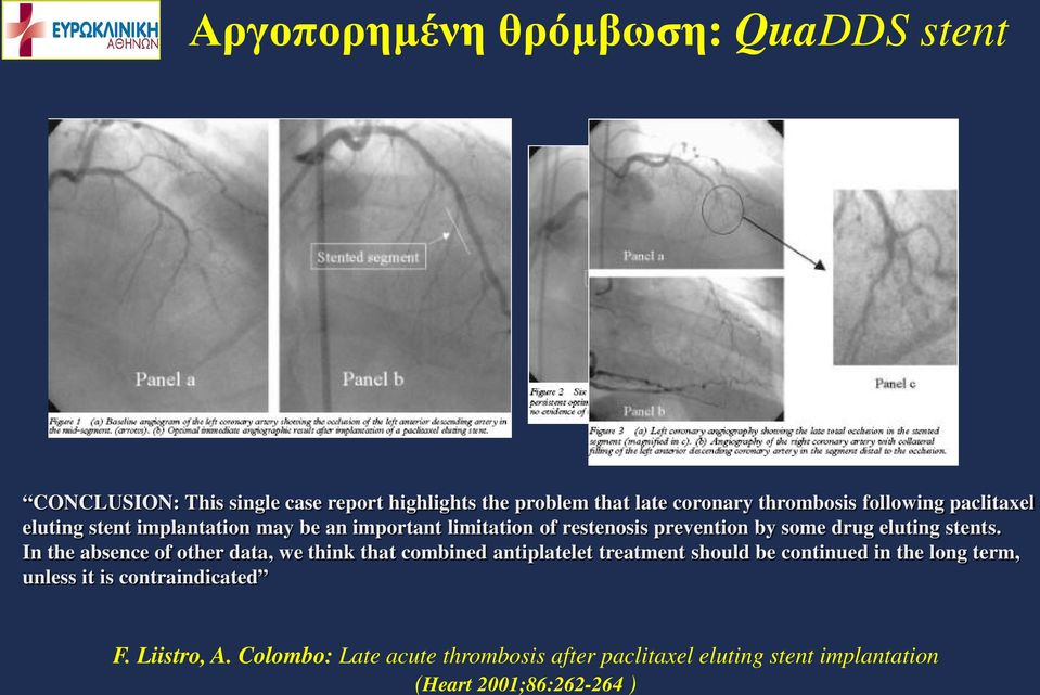 report highlights the problem that late coronary thrombosis following paclitaxel eluting stent implantation may be an important