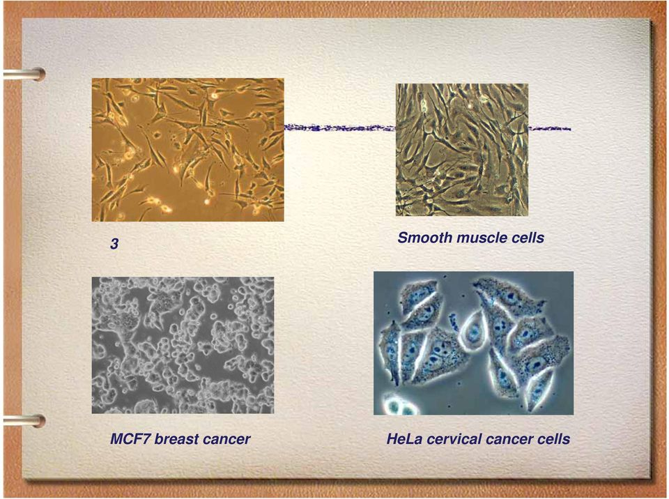 MCF7 breast cancer