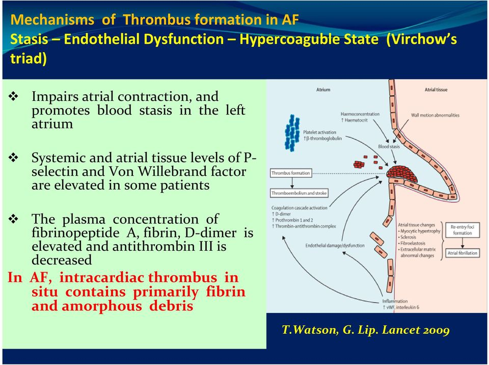 factor are elevated in some patients The plasma concentration of fibrinopeptide A, fibrin, D dimer is elevated and