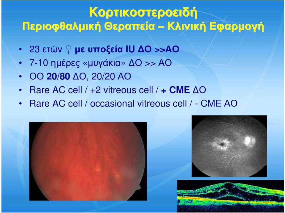 ΑΟ ΟΟ 20/80 Ο, 20/20 ΑΟ Rare AC cell / +2 vitreous cell
