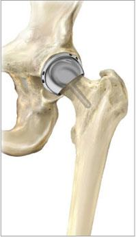 Alternative to total Hip Replacement Total hip resurfacing arthroplasty: A bone-preserving procedure that helps restore comfort and function to patients hips damaged by