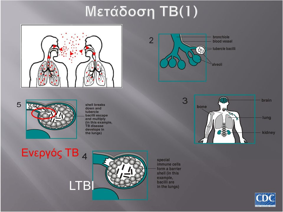 develops in the lungs) 3 bone brain lung kidney Ενεργός TB 4 LTBI