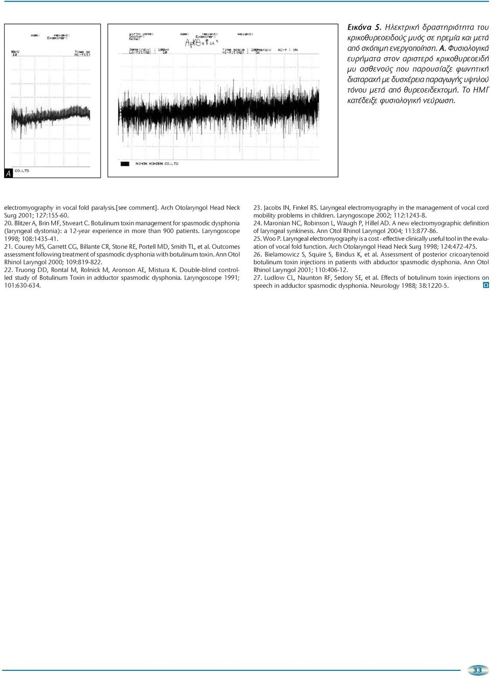 Α electromyography in vocal fold paralysis.[see comment]. Arch Otolaryngol Head Neck Surg 2001; 127:155-60. 20. Blitzer A, Brin MF, Stweart C.