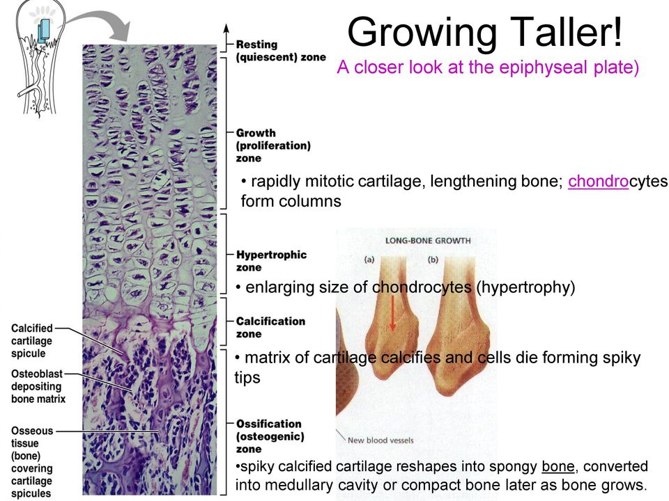 chondrocytes (hypertrophy) matrix of cartilage calcifies and cells die forming spiky tips