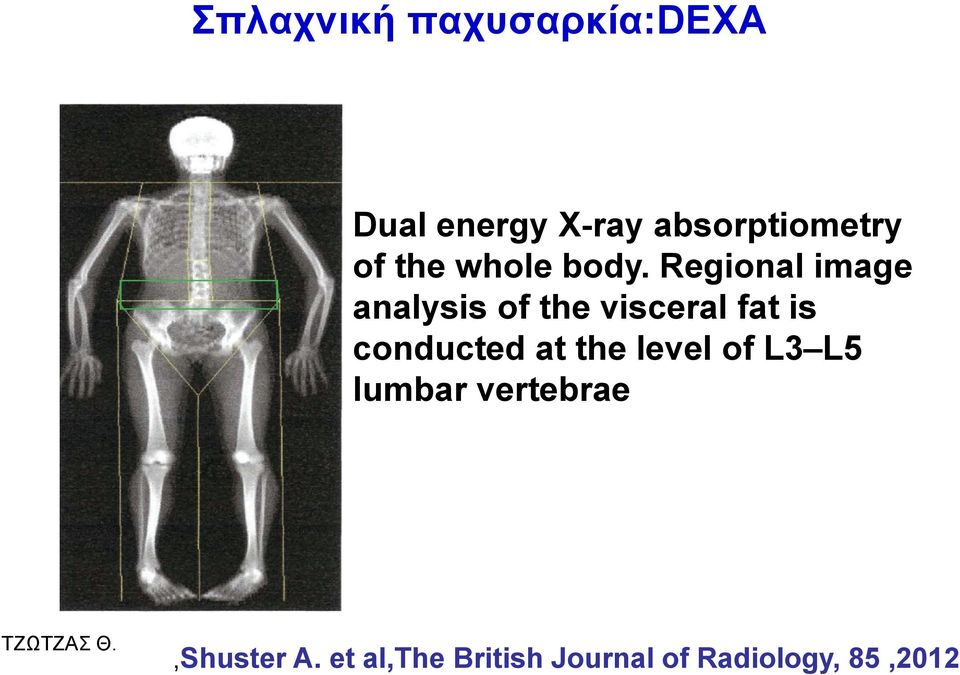 Regional image analysis of the visceral fat is conducted