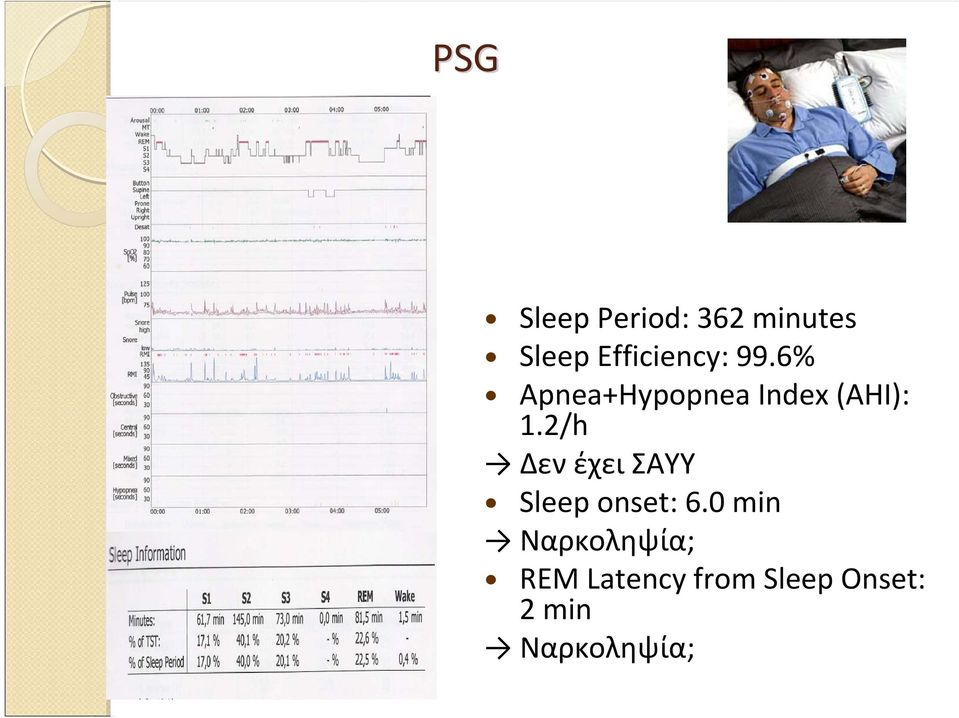 6% Apnea+Hypopnea Index (AHI): 1.