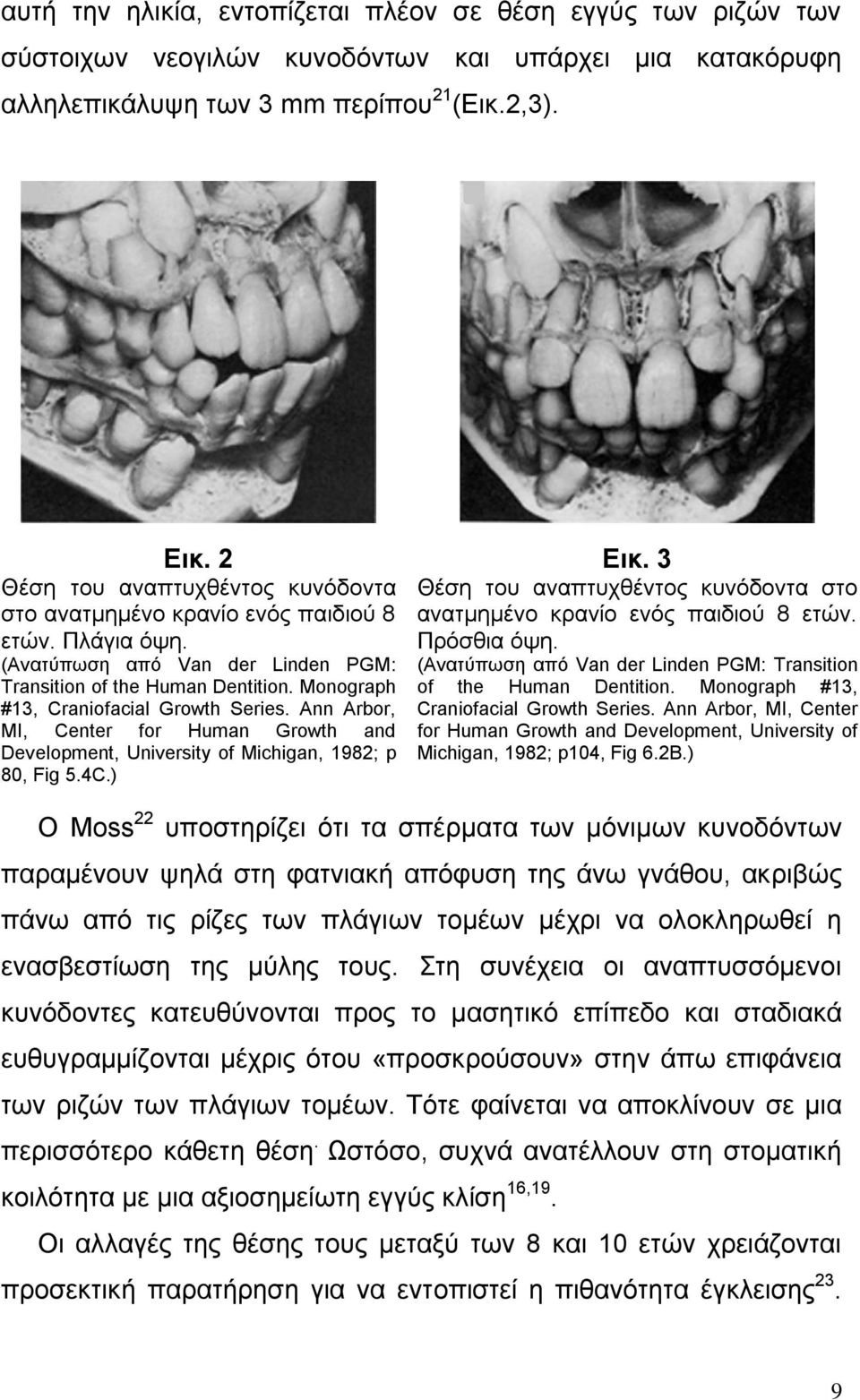 Monograph #13, Craniofacial Growth Series. Ann Arbor, MI, Center for Human Growth and Development, University of Michigan, 1982; p 80, Fig 5.4C.) Δηθ.