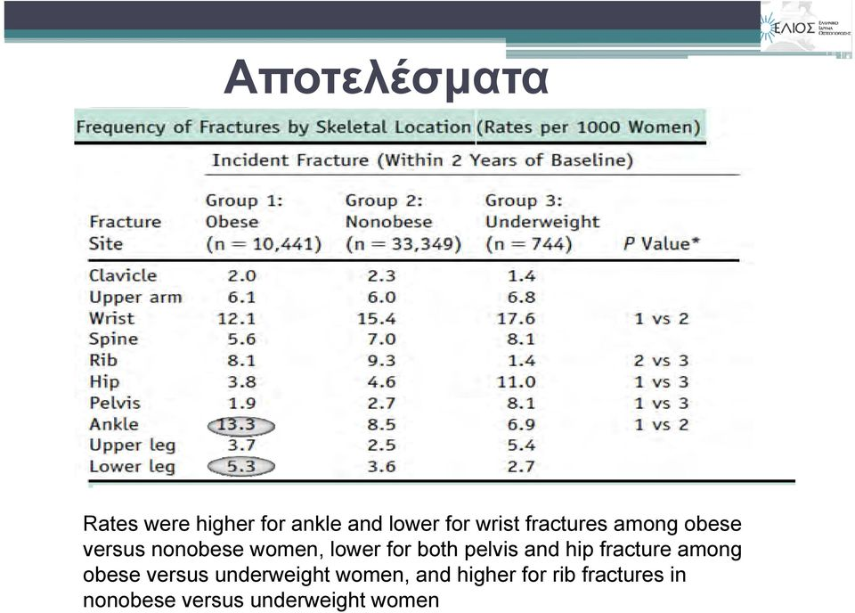 pelvis and hip fracture among obese versus underweight women,
