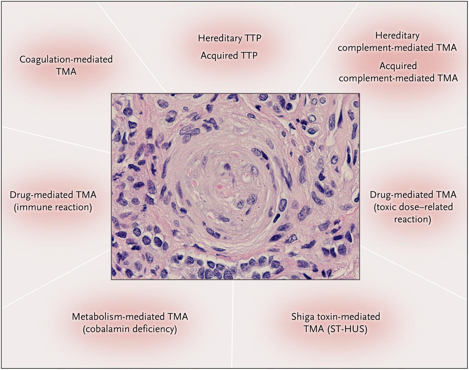 Ταξινόμηση ΤΜΑ Pathological Features of the Nine Primary Thrombotic