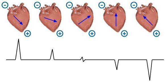 Upward deflection on the ECG- is produced when electrical impulses travel towards a positive electrode.