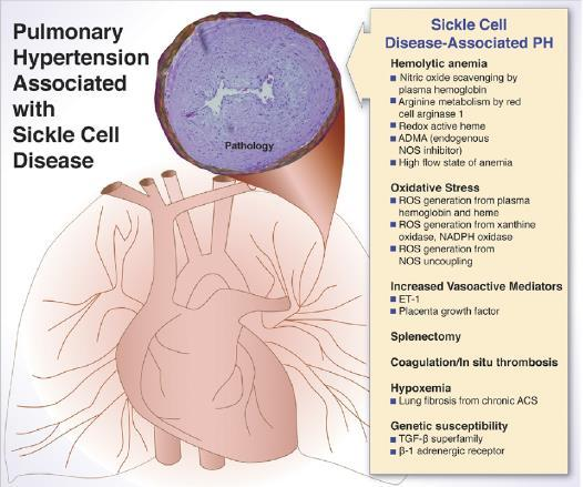 Vasculopathy and pulmonary hypertension in
