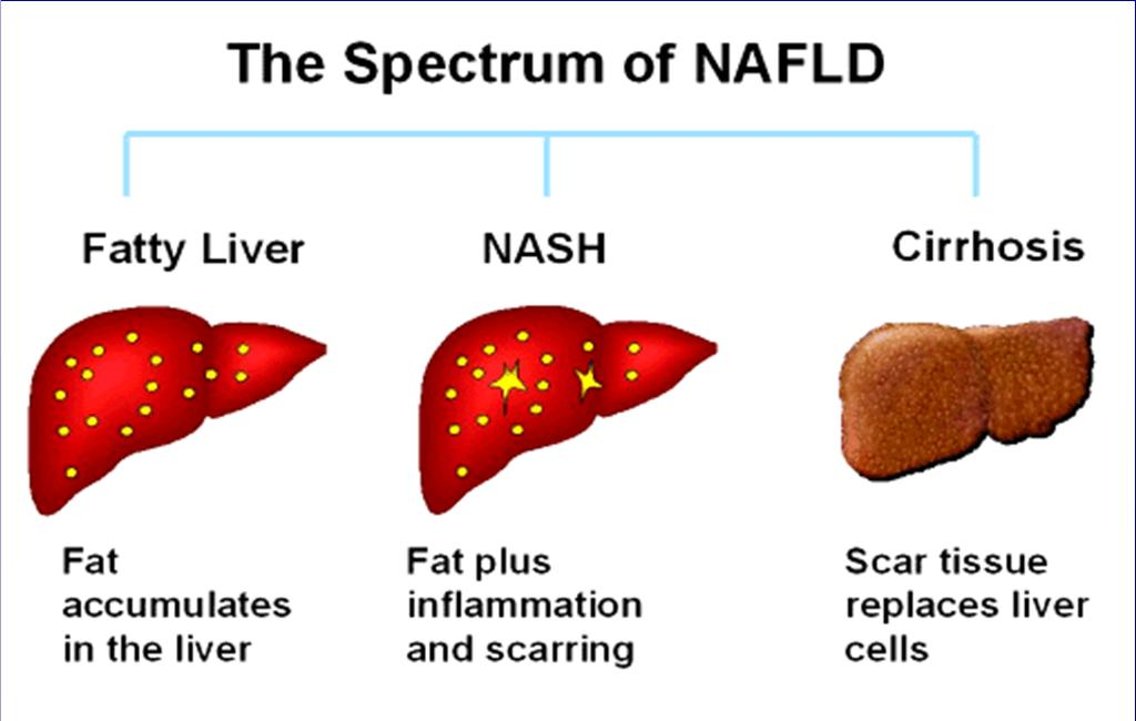 Non-Alcoholic Liver Disease model for the study of the secondary complications of obesity Fibrosis