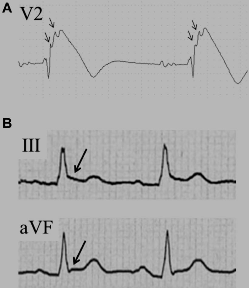 Electrocardiographic Parameters and Fatal Arrhythmic Events in Patients With Brugada Syndrome